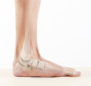 Flatfoot Correction